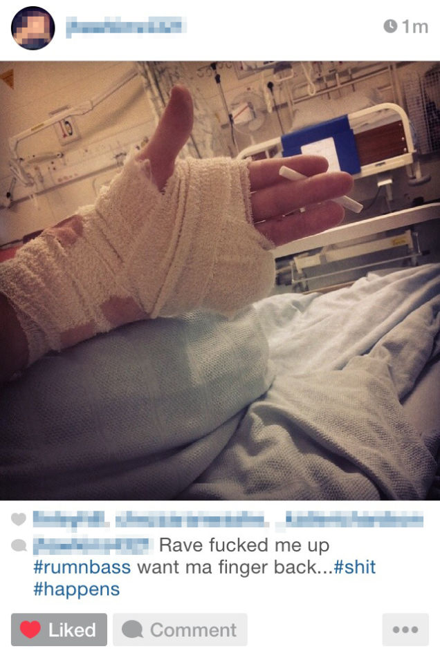 Teen Loses Finger During Rave, Keeps Going Because